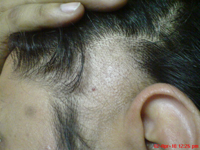 alopecia areata treatment steroids